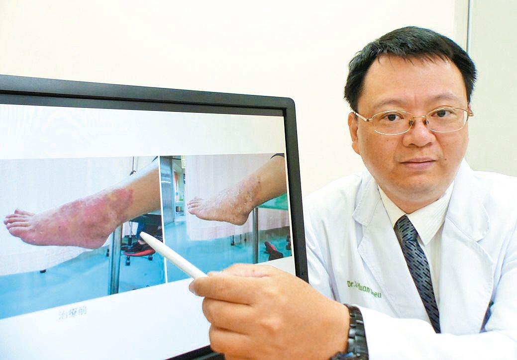 醫師許世源說明女病患左腳外踝大片濕疹。 記者趙容萱/攝影