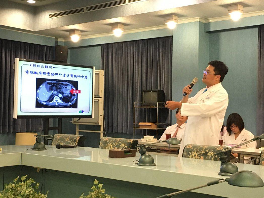 郭綜合一般外科主任盧乃寬介紹「殘胃癌」。圖/郭綜合提供