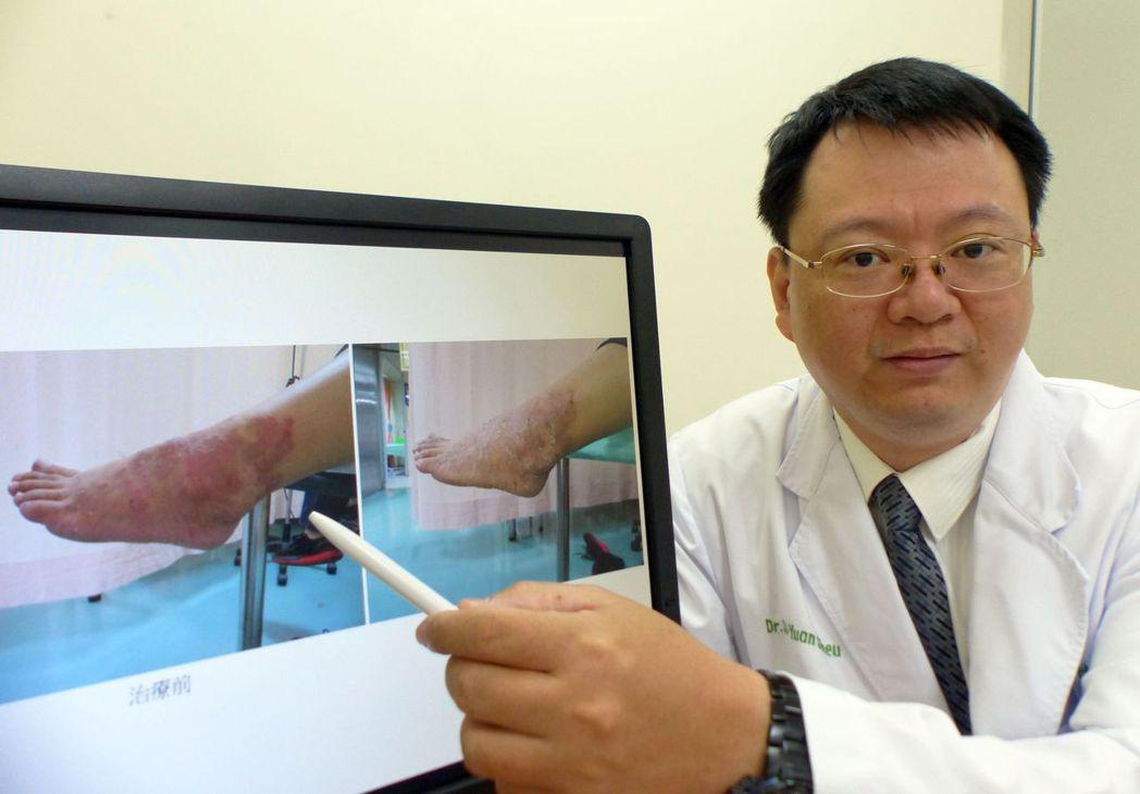 醫師許世源說明,女病患左腳外踝大片濕疹(左圖)搔癢難忍,經中藥內服搭配外敷治療5...