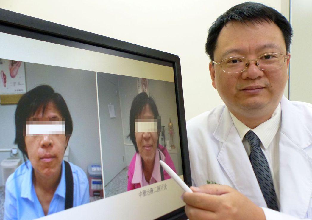 醫師許世源說明,女病患從小為異位性皮膚炎所苦(左圖),經中藥內服搭配外敷治療2個...