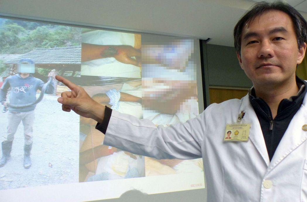 醫師毛彥喬說明,蕭姓工人左手腕慘遭眼鏡蛇咬傷,緊急送醫急救,住院23天救回一命。...