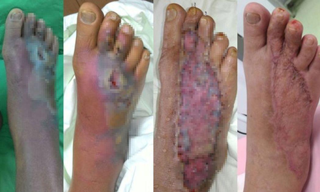 醫師毛彥喬說明,有病患遭眼鏡蛇咬傷後,第三天患部腫脹(左起)、一周後皮膚壞死,經...