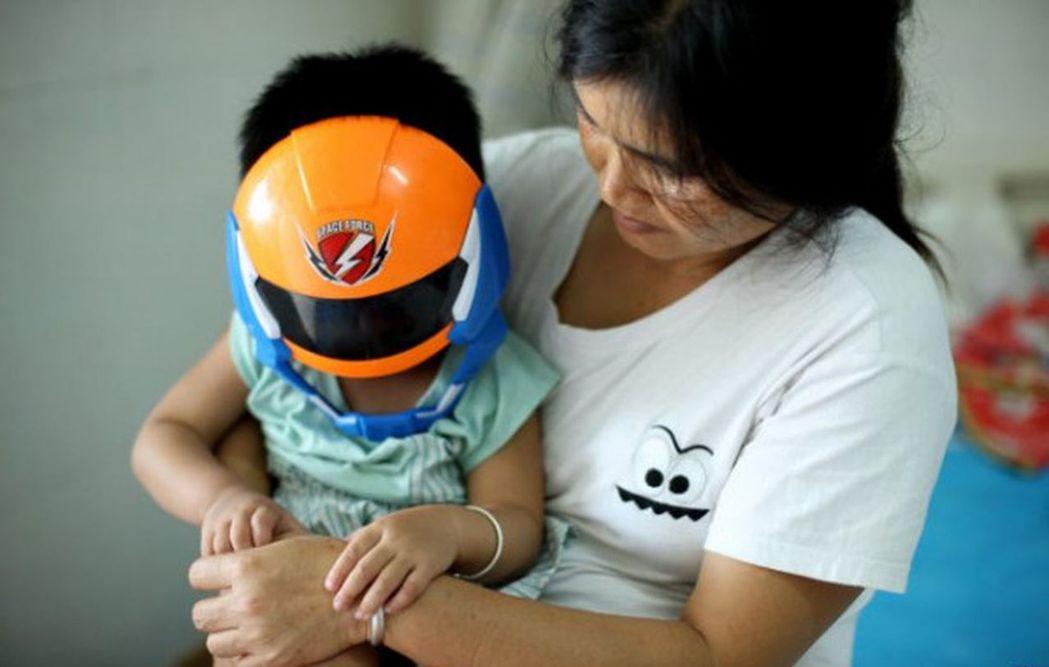 女童萱萱只要出去都會戴上面具,不戴面具別的孩子不跟她玩耍。(取材自微信)