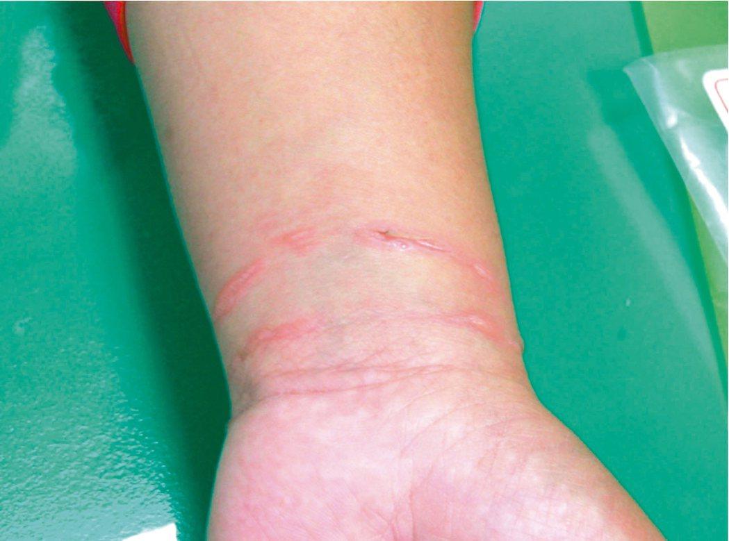 遺傳性血管水腫病患者手部腫脹到撐破皮膚,常讓人誤以為是割腕所致。 圖/徐世達提供