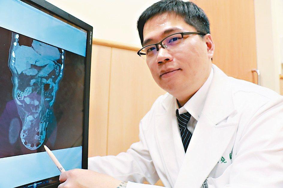 台中慈濟醫院一般外科醫師高國堯表示,疝氣通稱「墜腸」,任何年齡層都可能罹患。 記...