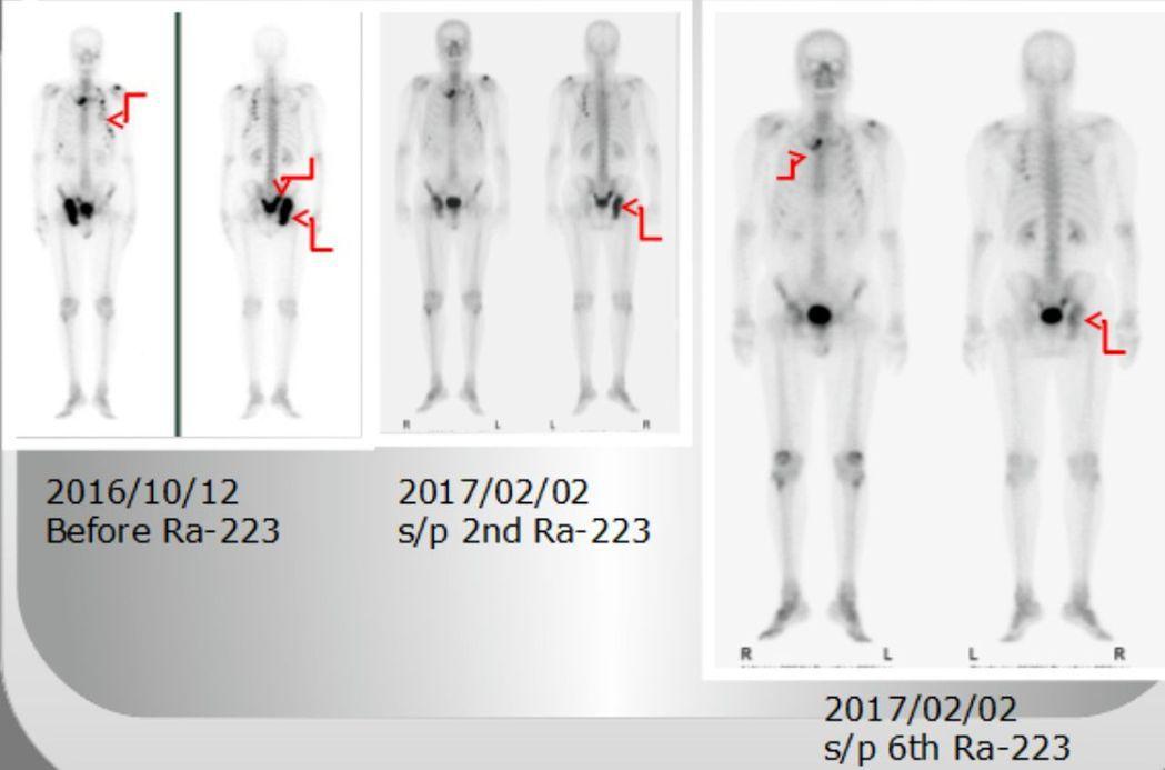 劉姓病患經接受核醫治療藥物鐳治骨®治療後,病況獲控制。圖/台中榮總提供