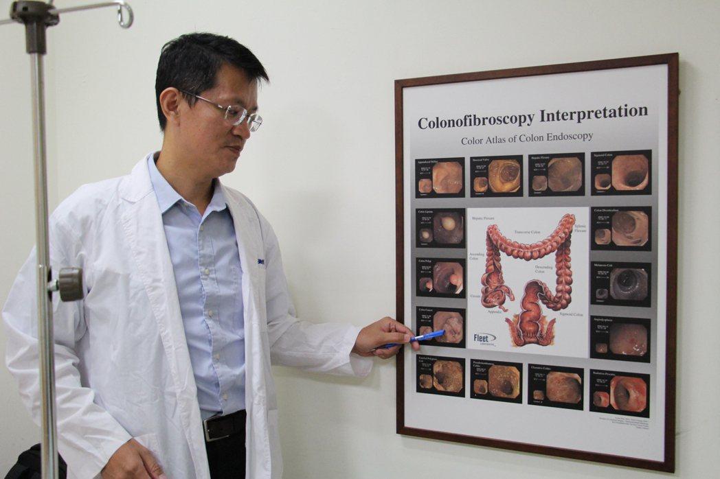 沙鹿光田醫院大腸直腸外科主任吳喬森指出,要遠離大腸癌需要每3年進行檢查。記者洪上...