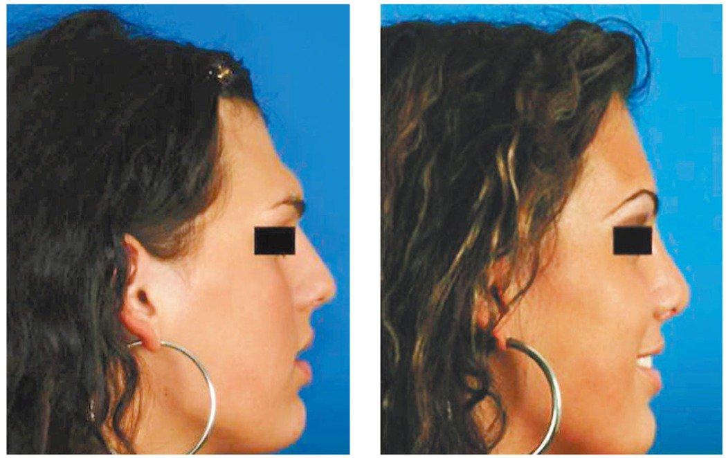一名男性接受臉部變性手術前(左),鼻梁與前額交界的角度為110度,手術後(右)為...