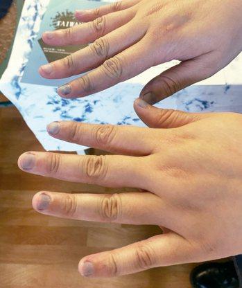 經常做藍染,連指甲都染藍了。 圖╱ 朱慧芳