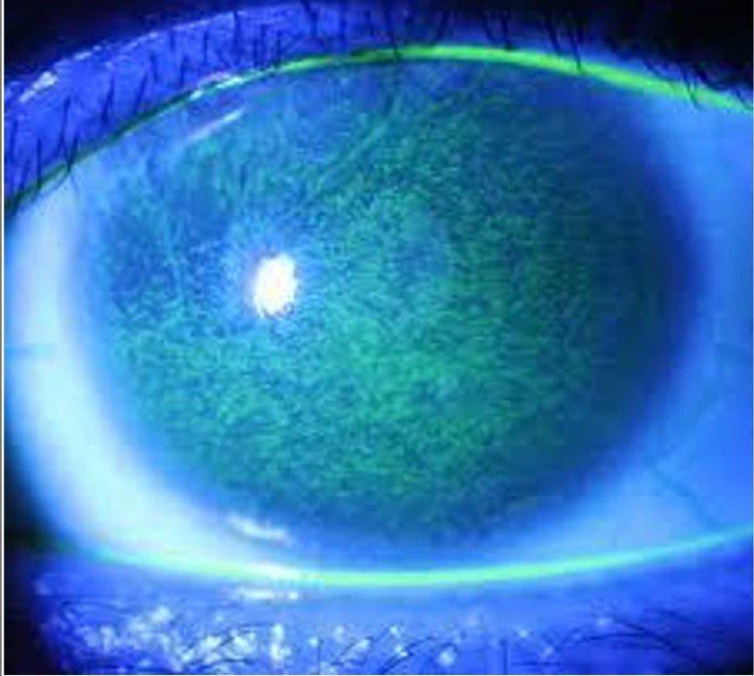 女大生眼睛刺痛、淚流不止就醫,從裂隙燈下可看到整片角膜上皮細胞已因乾眼症造成缺損...