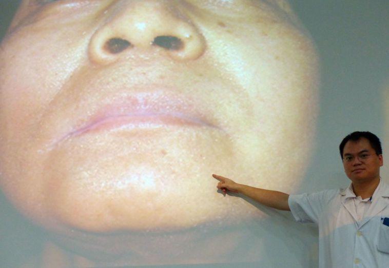 醫師賴志昇說明,陳姓粉領族術後臉部沒有疤痕,維持正常社交生活。記者趙容萱/攝影