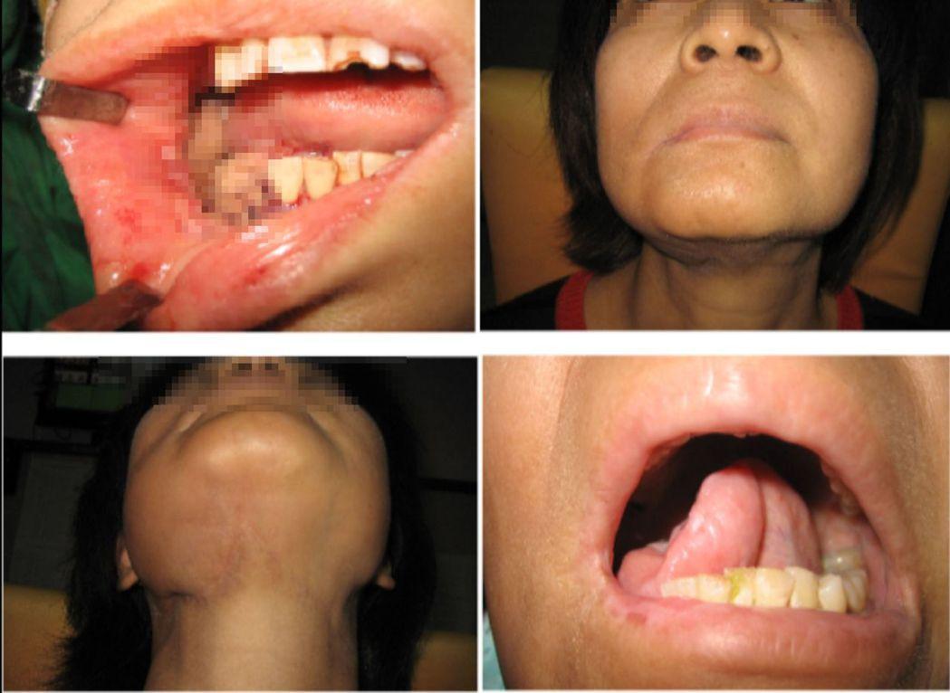 醫師賴志昇說明,陳姓粉領族術後臉部沒有疤痕,維持正常社交生活。圖/醫師賴志昇提供