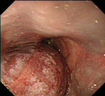一名台商應酬後發生罕見的全食道黏膜下血腫,有如「黑青」的腫塊,將整段食道幾乎塞住...