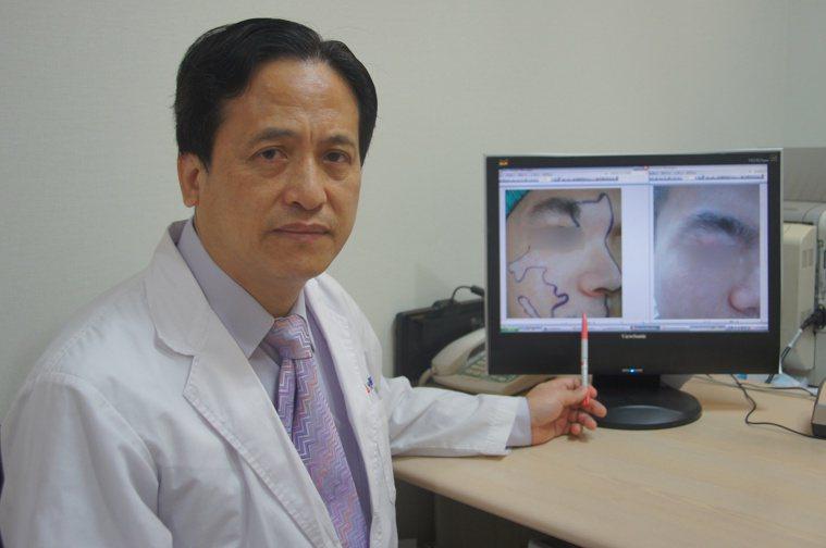 光田綜合醫院整形外科主任吳文宏指出,白斑症可透過手術可治療。記者洪上元/攝影