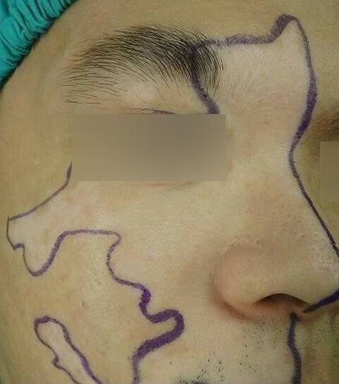 劉姓男大生因臉上的白斑,造成他生活及社交上的不便,若不就醫可能造成心理障礙。圖/...