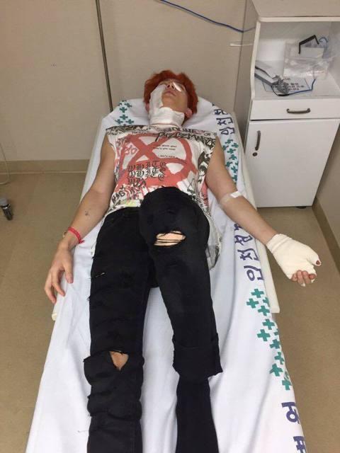 南韓團體U-KISS日前拍攝MV時發生爆發意外,成員基燮遭受二度燒燙傷,目前已送往醫院治療。經紀公司NH EMG表示,6日拍攝MV時,製造煙霧的機器爆炸,導致脖子、右臉、左手掌二度灼傷,由於爆炸當時...