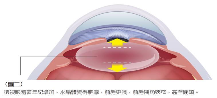 遠視眼隨著年紀增加,水晶體變得肥厚,前房更淺,前房隅角狹窄,甚至閉鎖。 圖/元氣...