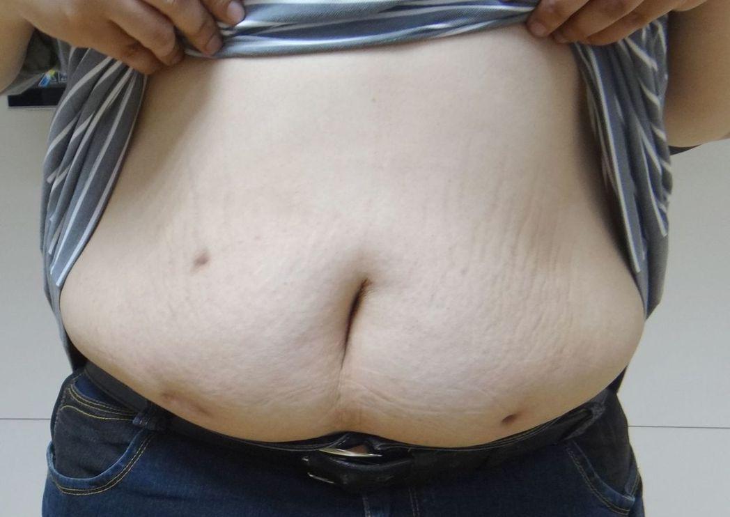 微創腹腔鏡手術,病人可以較小的皮膚傷口完成傳統大腸癌的根治手術,減少疼痛、加快術...