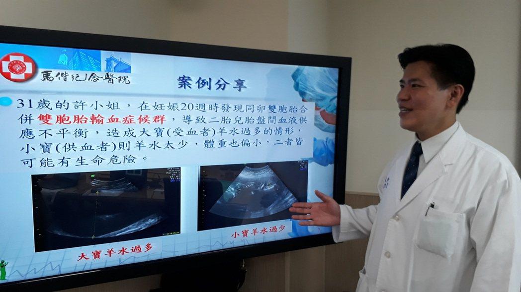 馬偕醫院婦產科部高危險妊娠科主任陳震宇。 圖/馬偕醫院提供