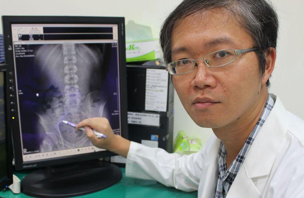 醫師鄭硯寧說明,透過檢查發現男大學生脊椎病變。圖/衛福部台中醫院提供