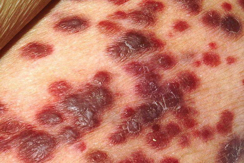 愛滋病的併發症——卡波西氏肉瘤。 圖/wikimedia