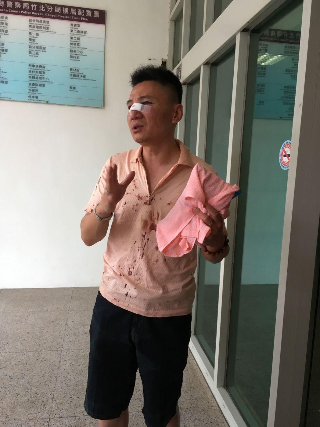 竹北分局協勤民防與越籍阮姓嫌犯搏鬥,造成鼻梁骨折。記者張雅婷/攝影