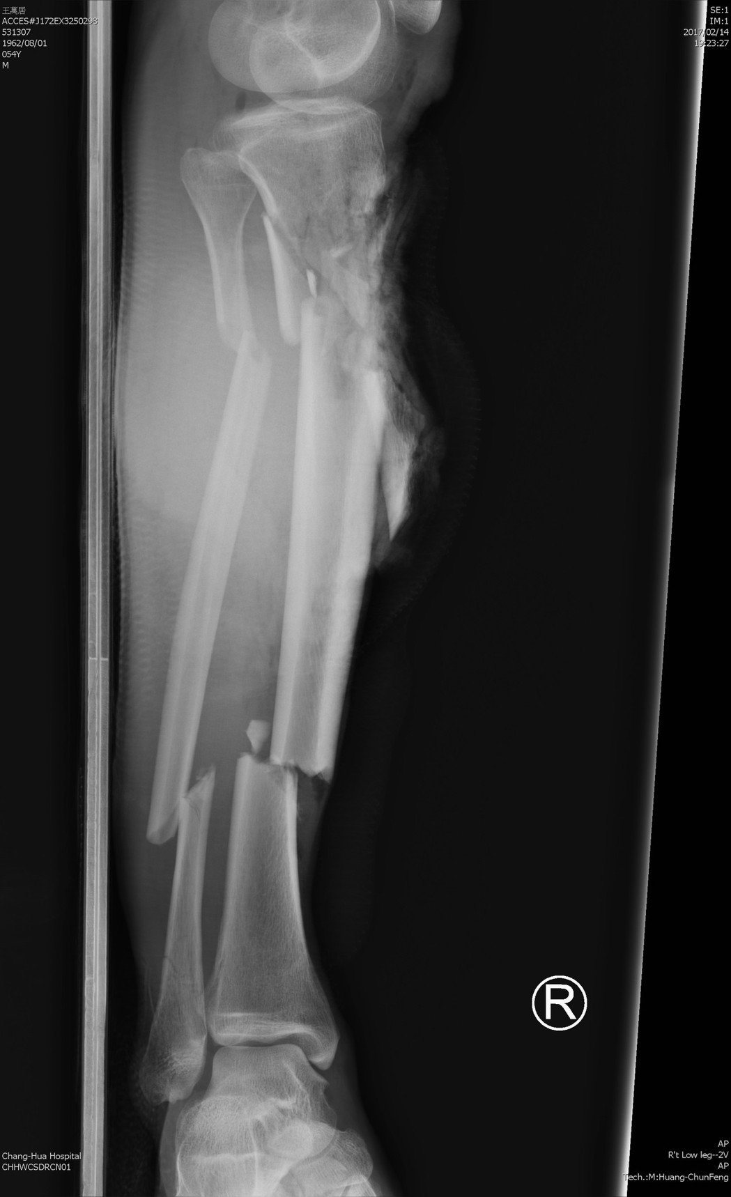 王先生日前被機車撞到骨頭斷6截,差點要截肢。圖/彰化醫院提供