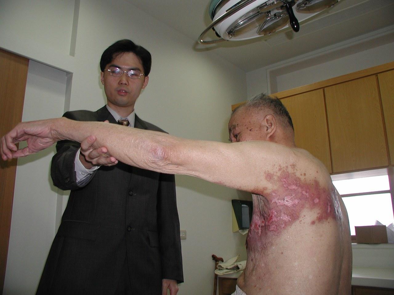 台北長庚皮膚科主治醫師黃毓惠表示,皮蛇就是醫學上所說的帶狀皰疹,多好發於55歲到...