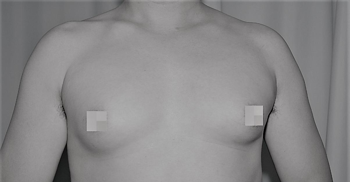 不少男性女乳症患者,因肥胖使乳房上累積過多的脂肪。圖/國泰醫院提供