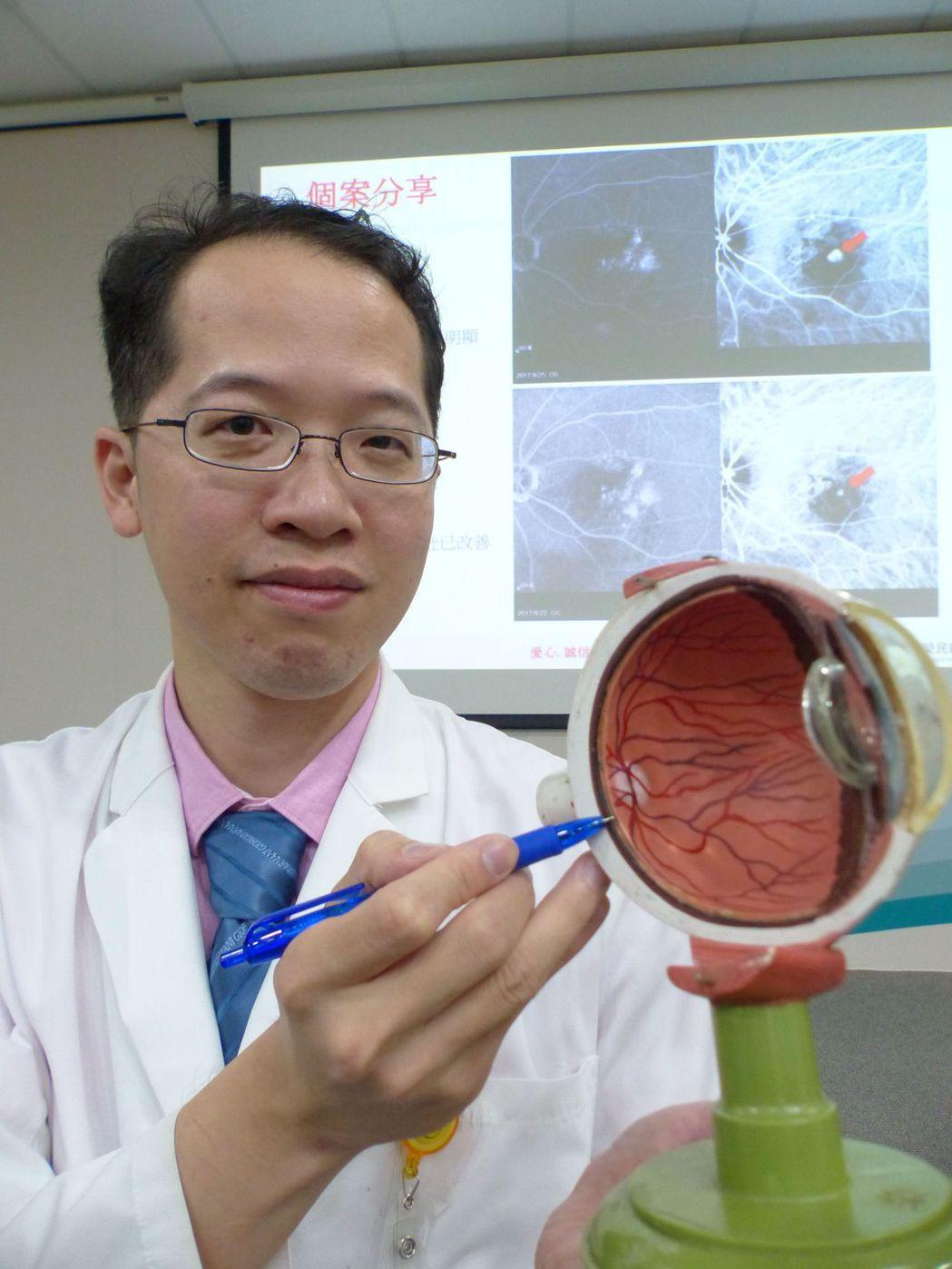 醫師許閔彥說明,彭姓餐廳主廚以雷射光打在病灶上83秒激發藥物,視力恢復正常。記者...