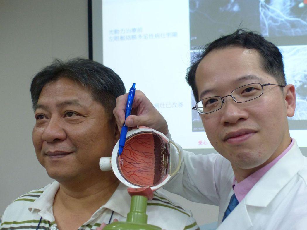 醫師許閔彥(右)說明,彭姓餐廳主廚(左)以雷射光打在病灶上83秒激發藥物,視力恢...