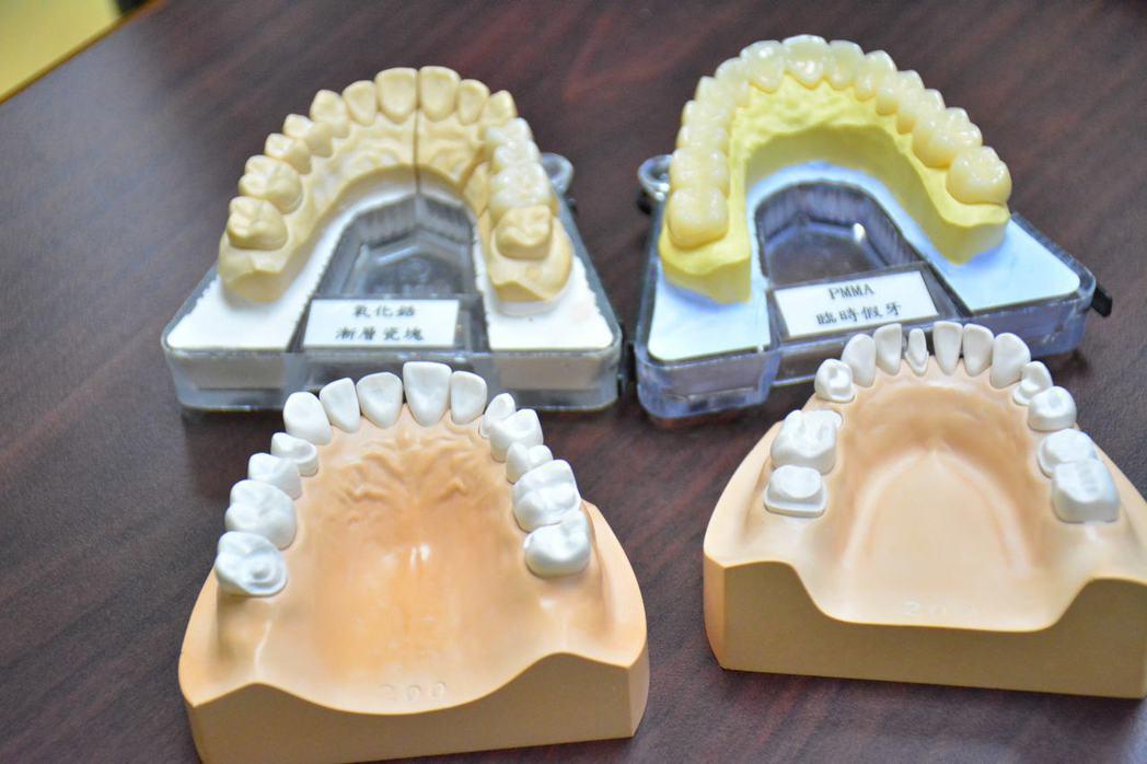 奇美醫學中心引進最新數位化牙科全套設備,讓假牙製作更準確美觀也更省時。記者吳淑玲...