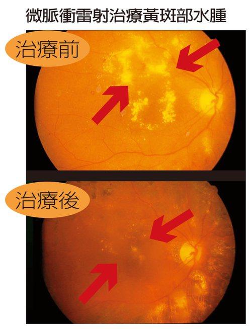 微脈衝雷射治療黃斑部水腫 圖/陳瑩山醫師提供
