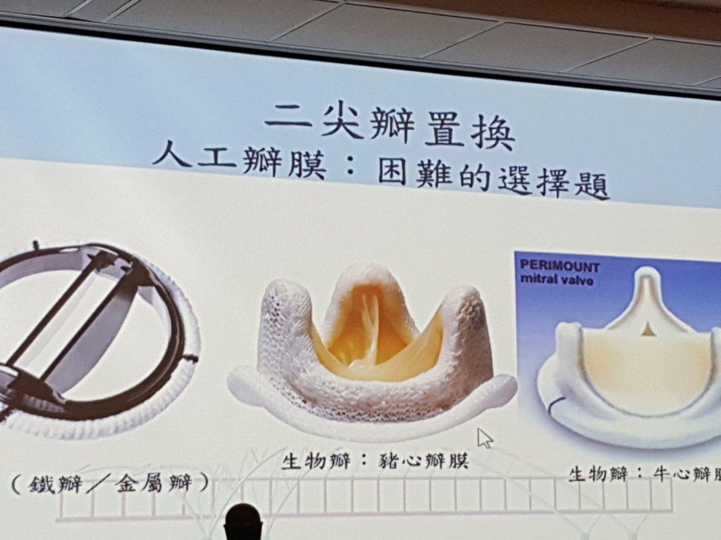 心臟二尖瓣膜置換是醫界不能說的祕密之一,採用自體修補的效果會比置換人工瓣膜好很多...