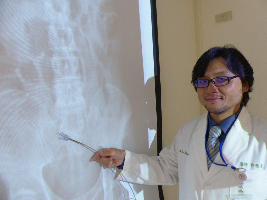 醫師許倍豪建議,超過3天沒排便,應儘速就醫檢查,圖為80病患裝置腸道金屬支架情況...