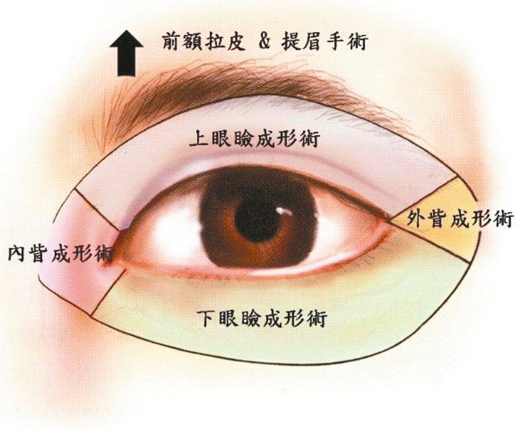眼眶周圍的美容手術包括前額拉皮與提眉手術、上眼瞼成形術(雙眼皮手術、上眼瞼拉皮手...