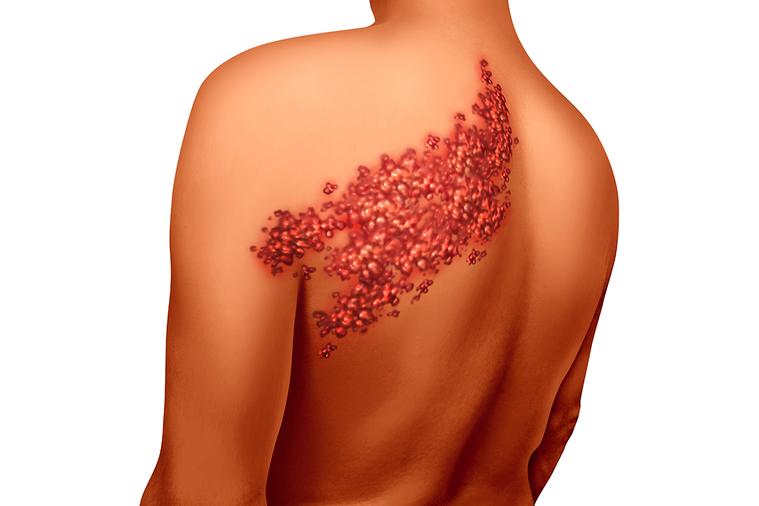 帶狀疱疹最惡名昭彰的是帶狀疱疹後神經痛,是指患者在皮膚愈合後三個月,患部仍舊會有...