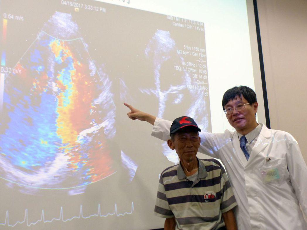 醫師劉尊睿(右)說明,郭姓鐵工廠老闆(左)透過導管修補二尖瓣膜後,救回心臟。記者...