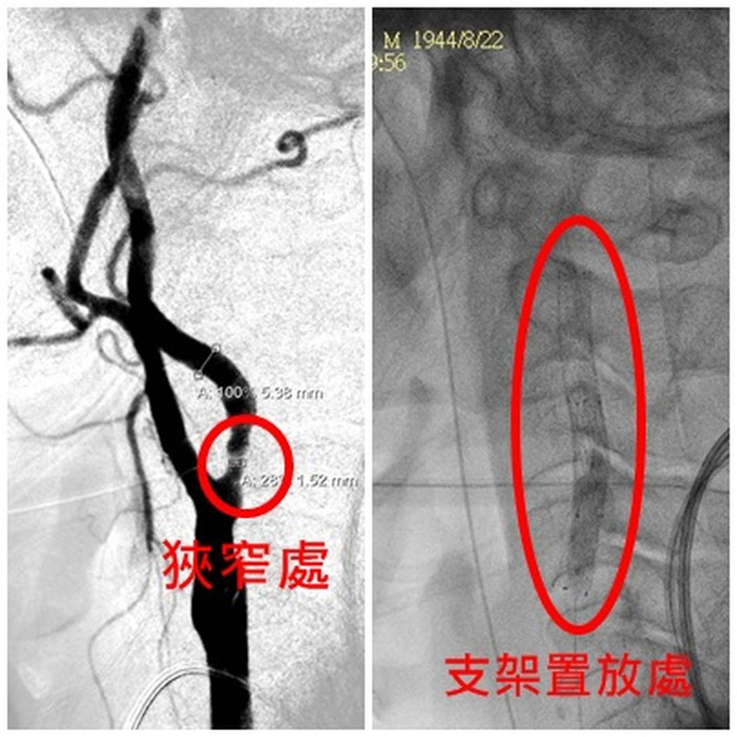 呂姓病患左側中大腦動脈梗塞性中風,經接受亞大醫院在頸動脈裝設支架後改善,也擺脫失...