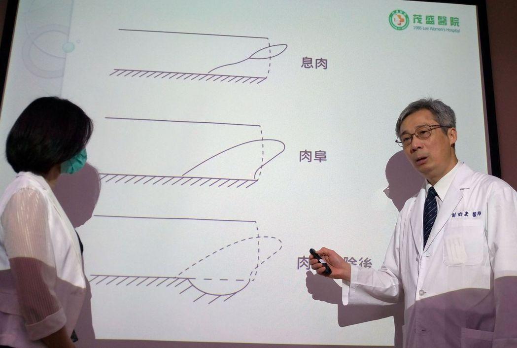 醫師謝卿宏(右)向林姓女病患說明,尿道口的肉阜(圖示中)和息肉(圖示上)不同,尿...