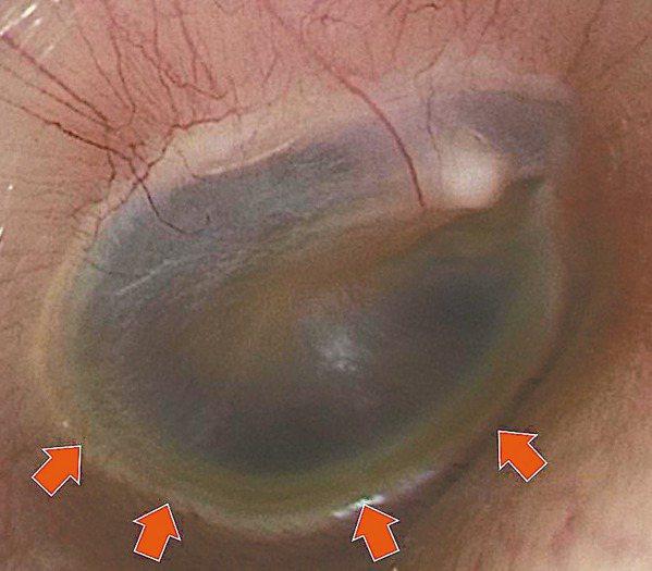 (圖一)此慢性中耳炎患者的耳膜下方,可以見到一層薄薄黃色的液面。 圖/陳建志提供
