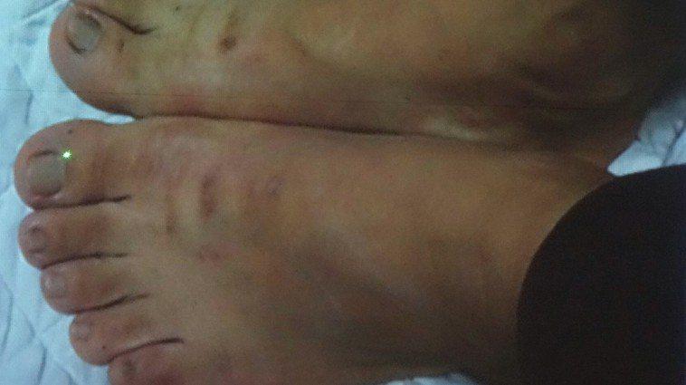 雲林縣一名45歲女子因為糖尿病、4年內胖了近20公斤、手腳腫大,就連齒縫也增大,...