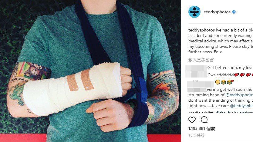 紅髮艾德在instagram上表示自己摔車受傷。圖/摘自IG