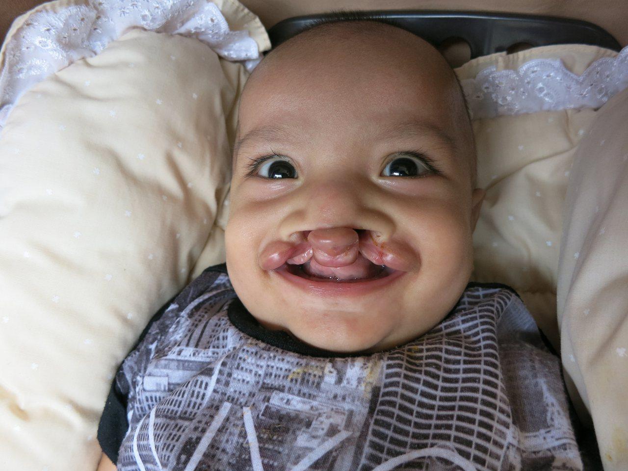 來自南太平洋邦交國吉里巴斯共和國的男童蘭里(圖)出生就有嚴重唇顎裂問題,透過當地...
