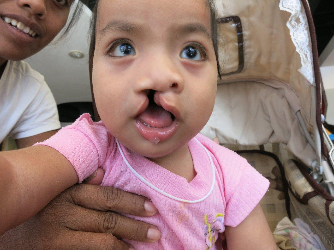 優搭巴手術前的右側完全性唇顎裂。圖/羅慧夫顱顏基金會提供