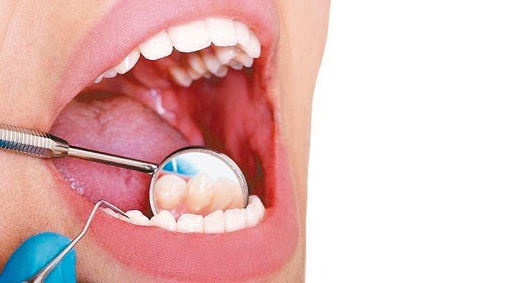 牙醫界推估,台灣高達900萬人有輕重程度不等的牙周病,但僅半數就醫,未來的生命品...