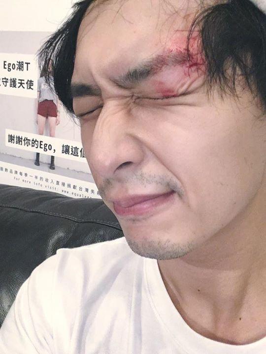 嚴爵撞破頭流血。圖/摘自臉書
