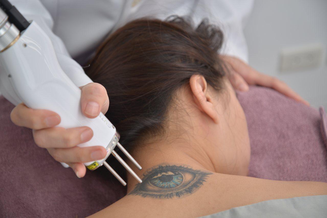 李育松強調,皮秒雷射可在能量耗損前處理好色素斑群,達到去除刺青治療選擇。桃園悠美...