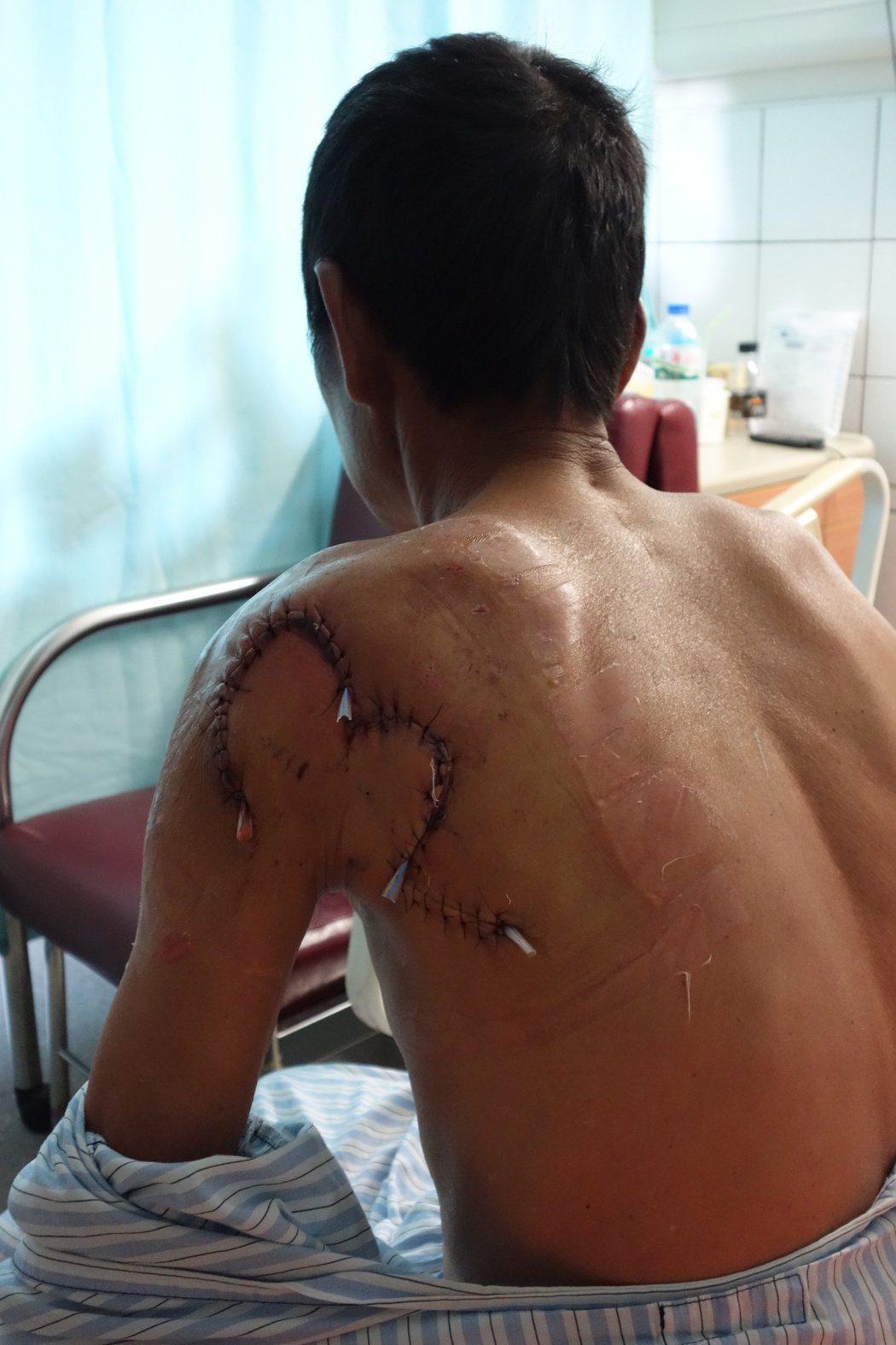 男子釣魚被魚刺到小傷口,感染海洋弧菌擴散到肩膀、下肢到病危,治療後挽回一命。圖/...