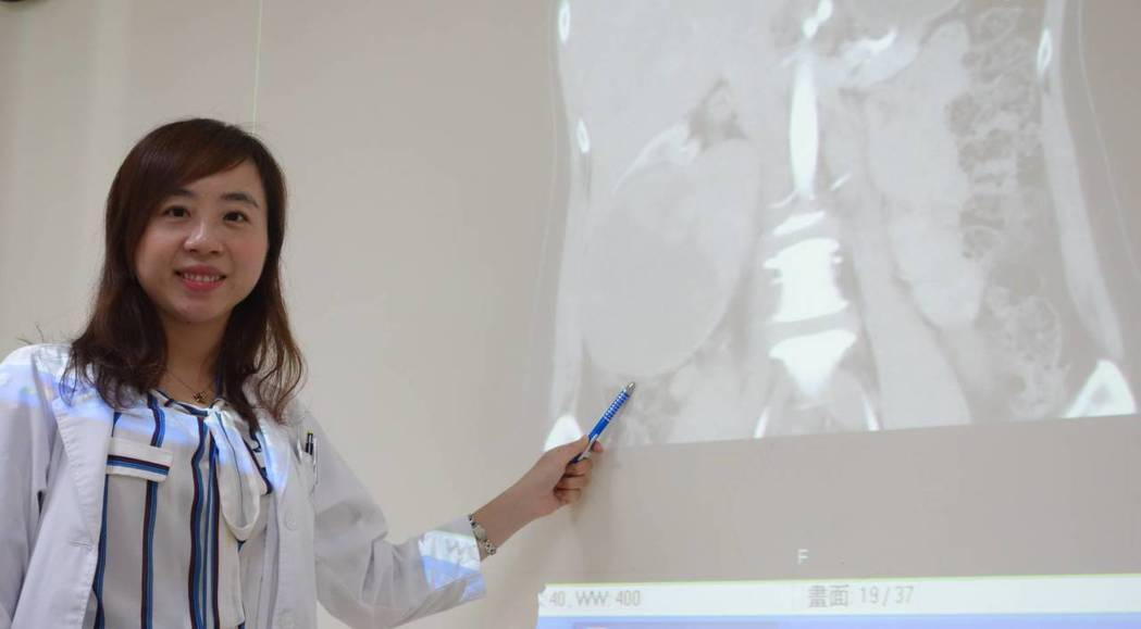 泌尿科醫師李香瑩說,該名女性患者的腎細胞腫瘤大至12公分,從後腹向前延伸,還從右...